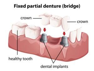 Dental bridges diagram
