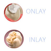 Inlays / Onlays