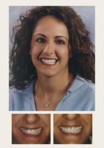 Dental Patient, Before & After