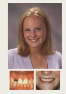 Dental Patient, Veneers Before & After