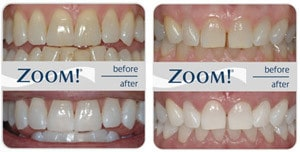 Whitening Before & After